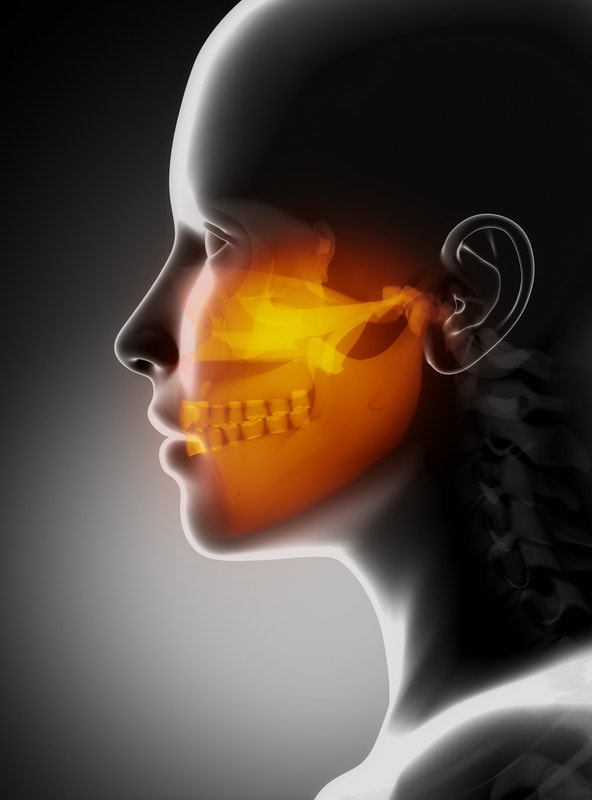 TMJ or Dental treatment to reposition the lower jaw.